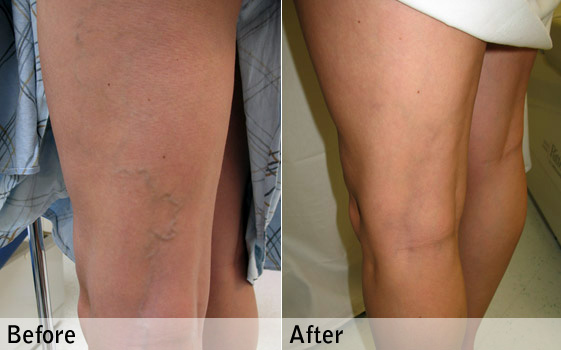 Spider Veins Treatment - Pre and post application